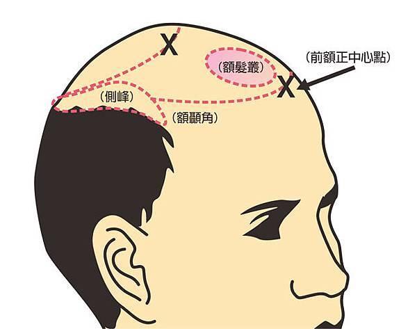 植髮髮線規劃-2.jpg