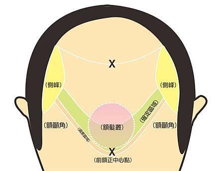 植髮髮線規劃-1.jpg