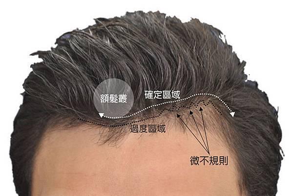 植髮髮線規劃-3.jpg