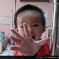 昊昊住院05
