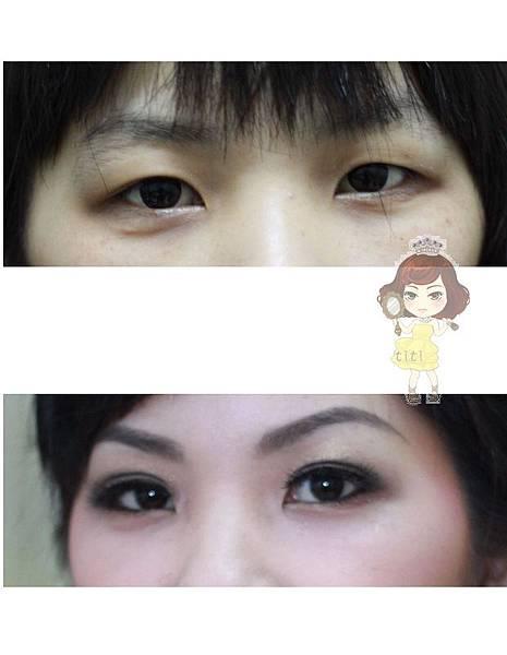 內雙眼皮3.jpg