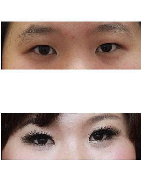 調整單眼皮1.jpg
