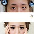 調整單眼皮3.jpg