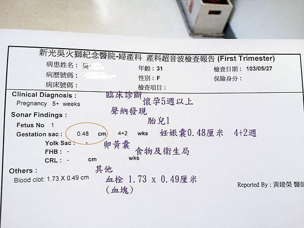 tn_五周胚胎20140527 -1