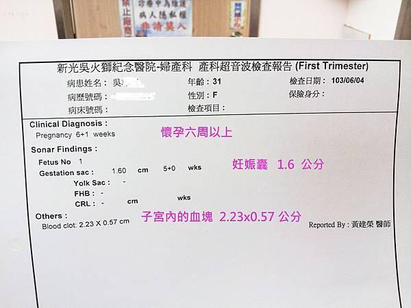 tn_六周胚胎- 20140604