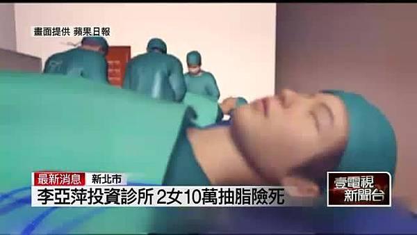 liposuction failure news.jpg