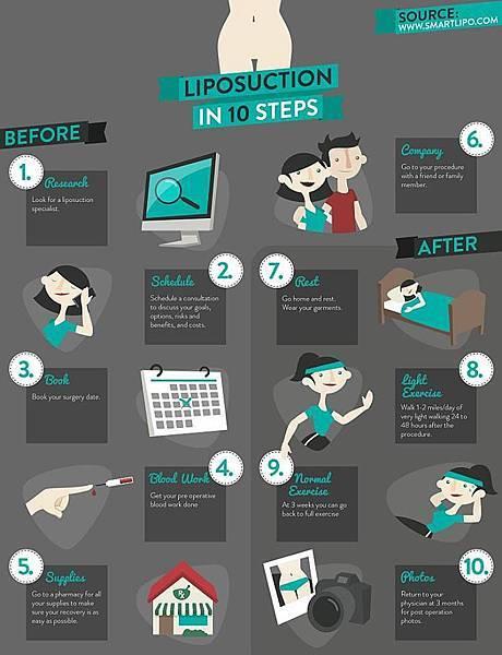 抽脂十步驟(美國整形外科協會建議)