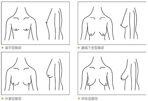 breast shape.jpg