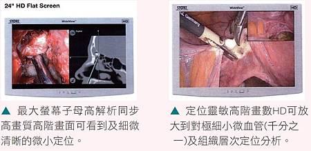 HD1080內視鏡