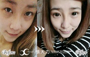 日式雙眼皮