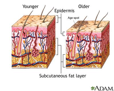 skin structure01