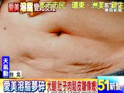 liposuction failure news02.jpg