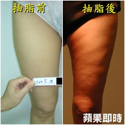 liposuction failure news05.jpg