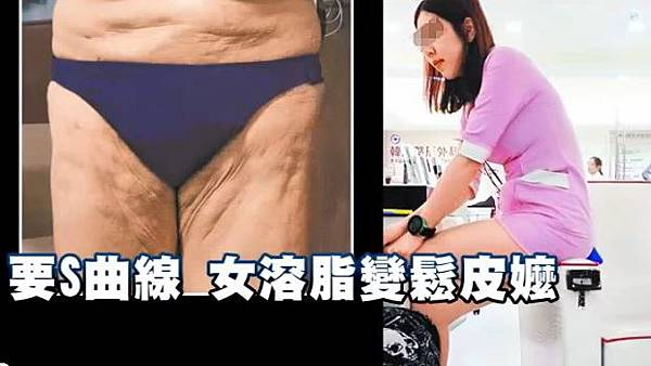 liposuction failure03.jpg