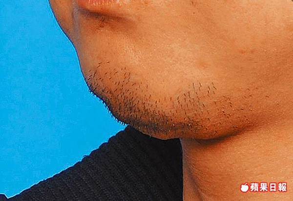 chin fatgraft failure.jpg