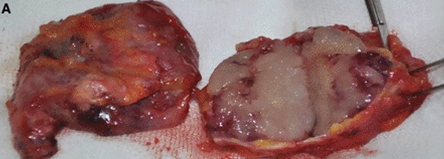 Mucinous carcinoma-03.png