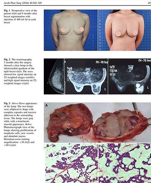 Mucinous carcinoma-02.jpg