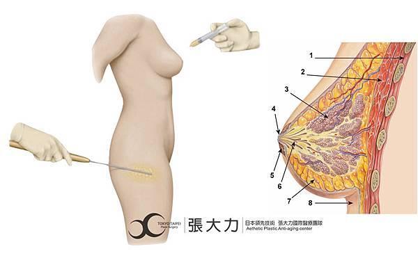 Fat injection.jpg