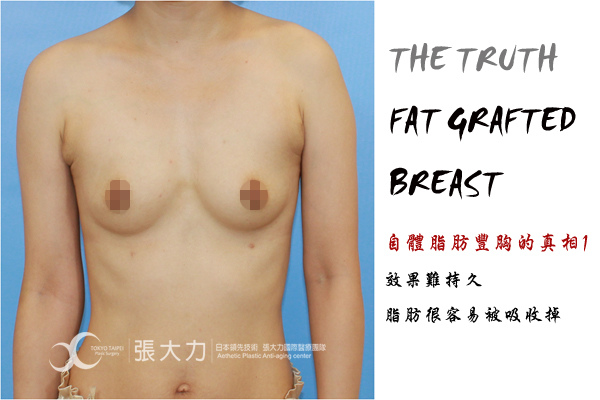 002-fat grafted breast case1.jpg