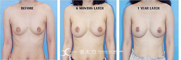 006-before after.jpg