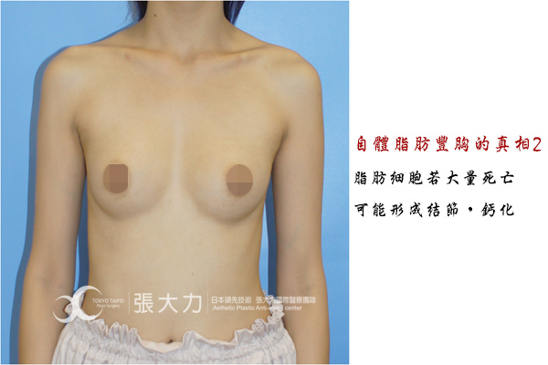 008-fat grafted breast case2.jpg