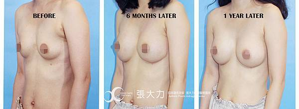 007-before after.jpg