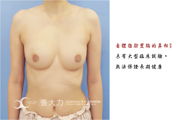 014-fat grafted breast case3.jpg