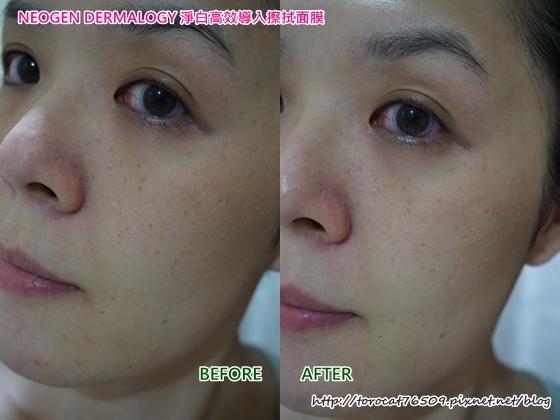 NEOGEN DERMALOGY 淨白高效導入擦拭面膜-使用前後1.jpg