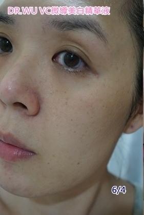 DR.WU VC微導美白精華液-6-4素顏.jpg