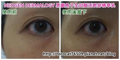 NEOGEN DERMALOGY 黑鑽魚子全效賦活眼部精華乳-使用前後2.jpg