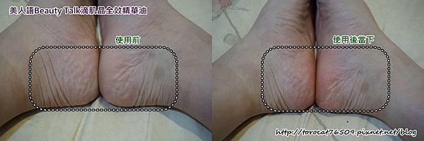 美人語Beauty Talk滴肌晶全效精華油-使用在足部 前後照.jpg