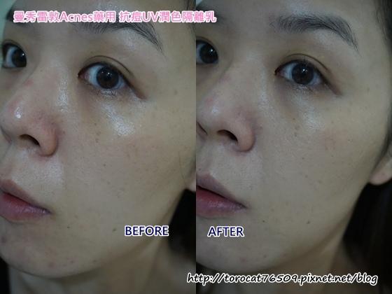 曼秀雷敦Acnes藥用 抗痘UV潤色隔離乳-使用前後1.jpg