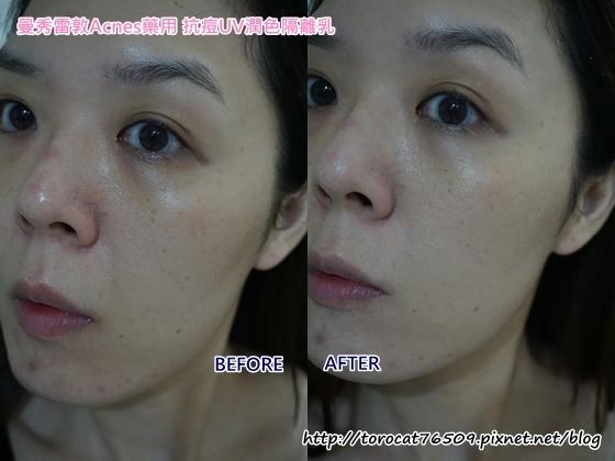 曼秀雷敦Acnes藥用 抗痘UV潤色隔離乳-使用前後2.jpg