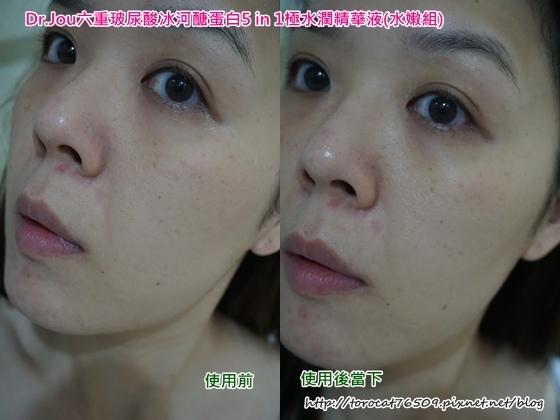 Dr.Jou六重玻尿酸冰河醣蛋白5 in 1極水潤精華液-使用前後1.jpg