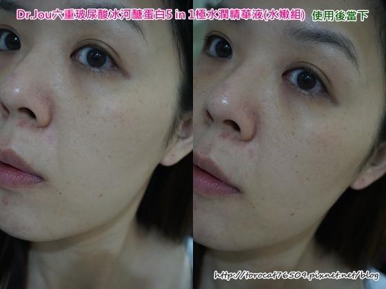 Dr.Jou六重玻尿酸冰河醣蛋白5 in 1極水潤精華液-使用後.jpg