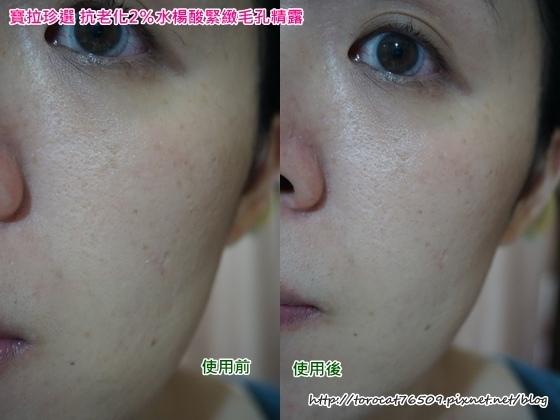 寶拉珍選 抗老化2%水楊酸緊緻毛孔精露-使用後當下2.jpg