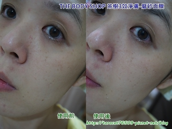 THE BODY SHOP 茶樹3效淨膚-磨砂面膜-使用前後.jpg