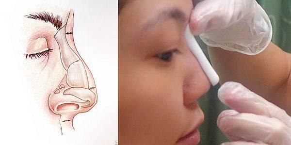鼻子構造.jpg