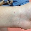 左手動脈針