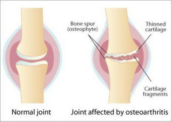 骨關節炎-b