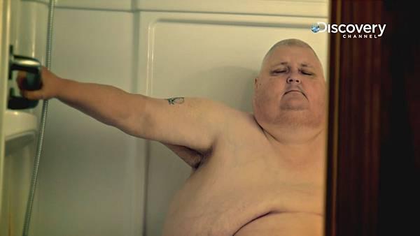 洛根患有病態性肥胖 雙腿間腫瘤生長重達至60公斤