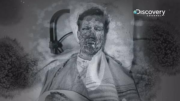 天花病毒入侵人體後會有14天的潛伏期,潛伏期間不會有任何病癥,病發初期會開始發燒、起紅疹,紅疹多分布在臉上以及四肢的末端,呈現離心性的分布,並漸漸形成水泡、膿疱。
