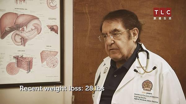 納查拉登醫生將靠醫學治療幫助道格展開減重之路.jpg