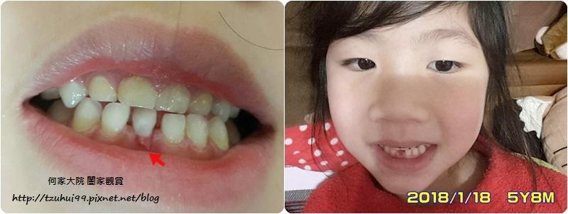 何小妹的換牙日誌 02.jpg