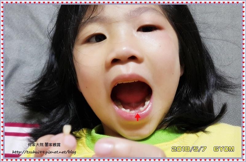 何小妹的換牙日誌 03.jpg