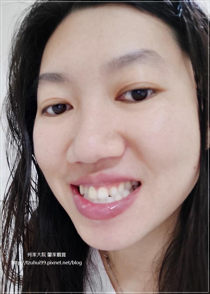 植淨 植牙與牙周氧護牙膏+活性氧護漱口水 24.jpg