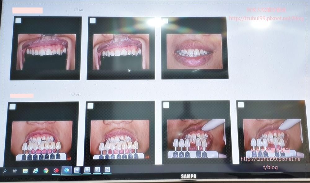 萊德美學牙醫診所(林口牙醫診所) 26