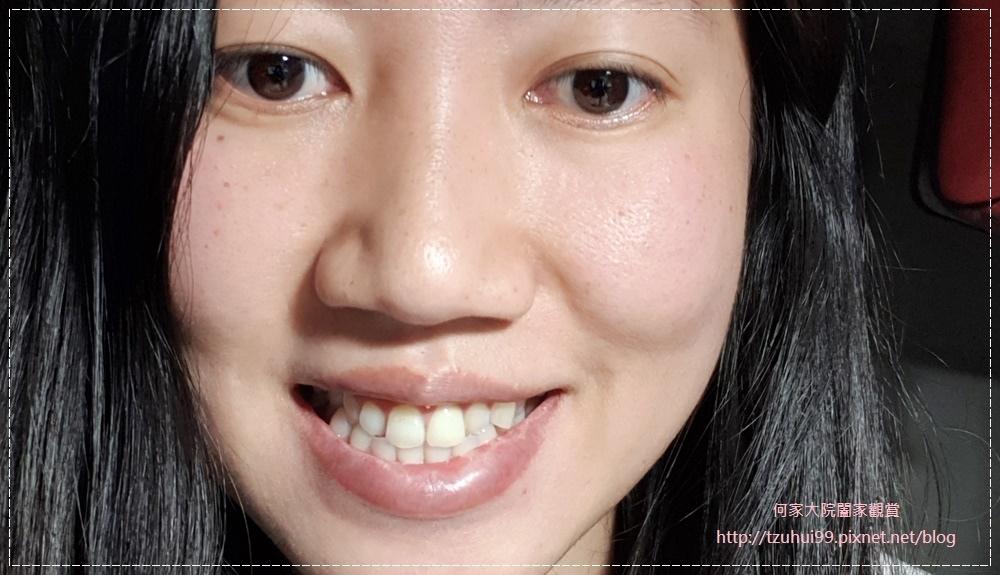 萊德美學牙醫診所(林口牙醫診所) 29