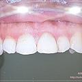 萊德美學牙醫診所(林口牙醫診所) 31