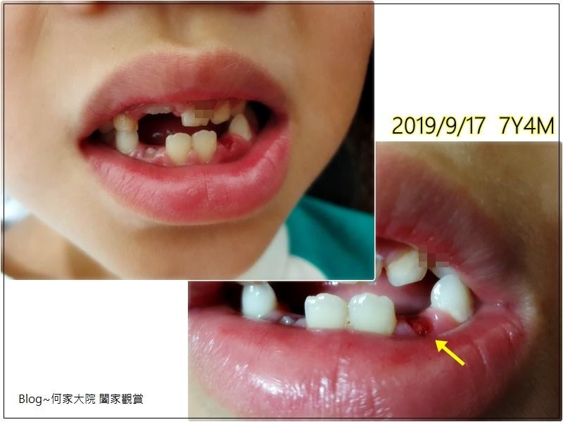 何小妹換牙記 20190917-2